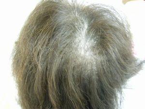 施術前の画像です。髪が切れてツムジ辺りが薄くなっています。