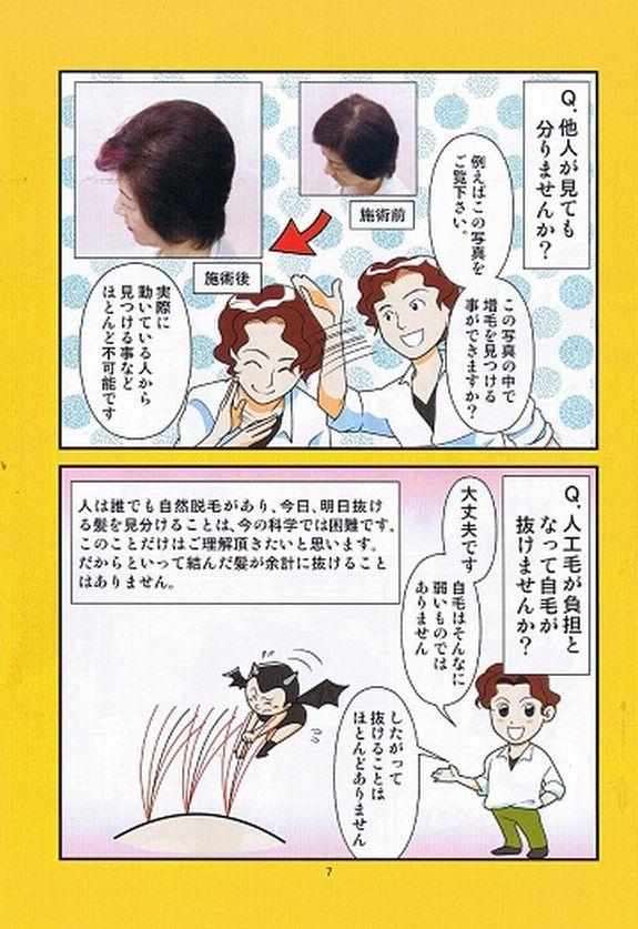 7ページ目、Q.他人が見てもわかりませんか?A.実際に動いている人から見つけるのは不可能です。Q.人工毛が負担となって自毛が抜けませんか?A.大丈夫です、自毛はそんなに弱いものではありません、したがって抜けることはほとんどありません。