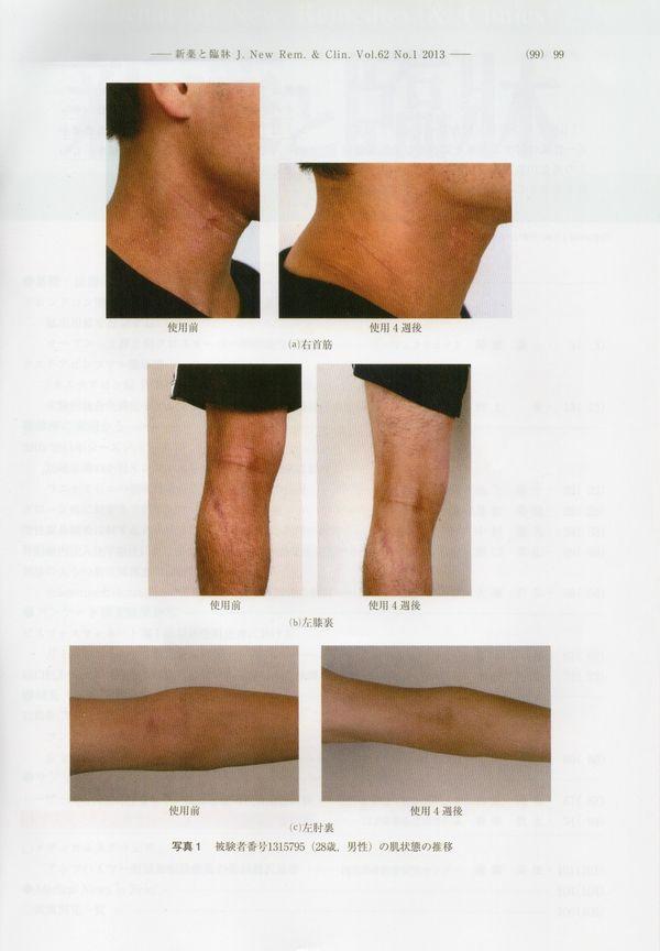被験者男性の肌状態の推移画像です。